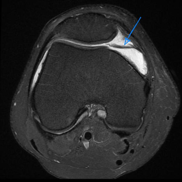 МРТ-картина при синдроме медиопателлярной складки